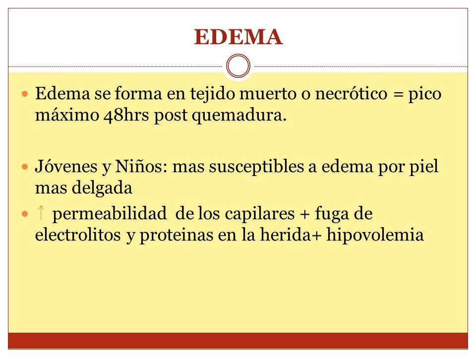 EDEMA Edema se forma en tejido muerto o necrótico = pico máximo 48hrs post quemadura. Jóvenes y Niños: mas susceptibles a edema por piel mas delgada.