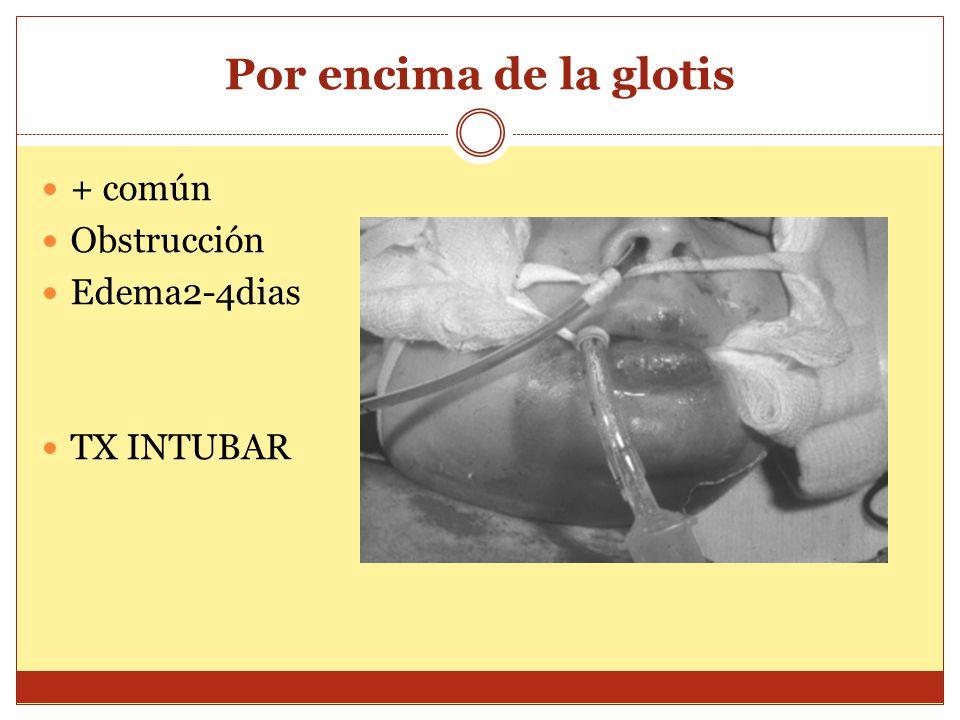 Por encima de la glotis + común Obstrucción Edema2-4dias TX INTUBAR