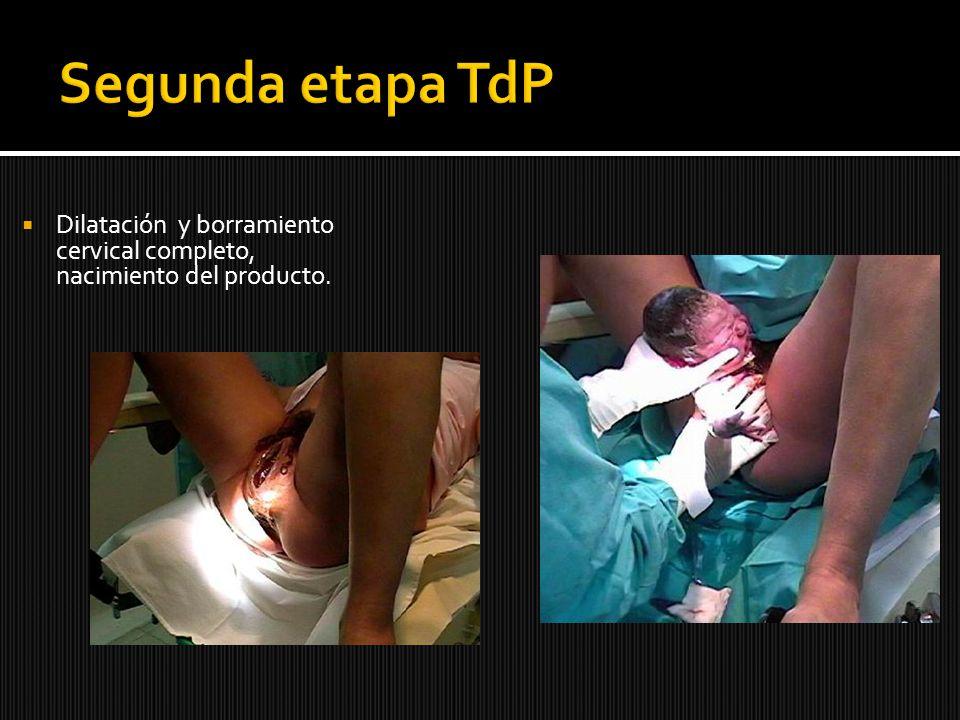 Segunda etapa TdP Dilatación y borramiento cervical completo, nacimiento del producto.