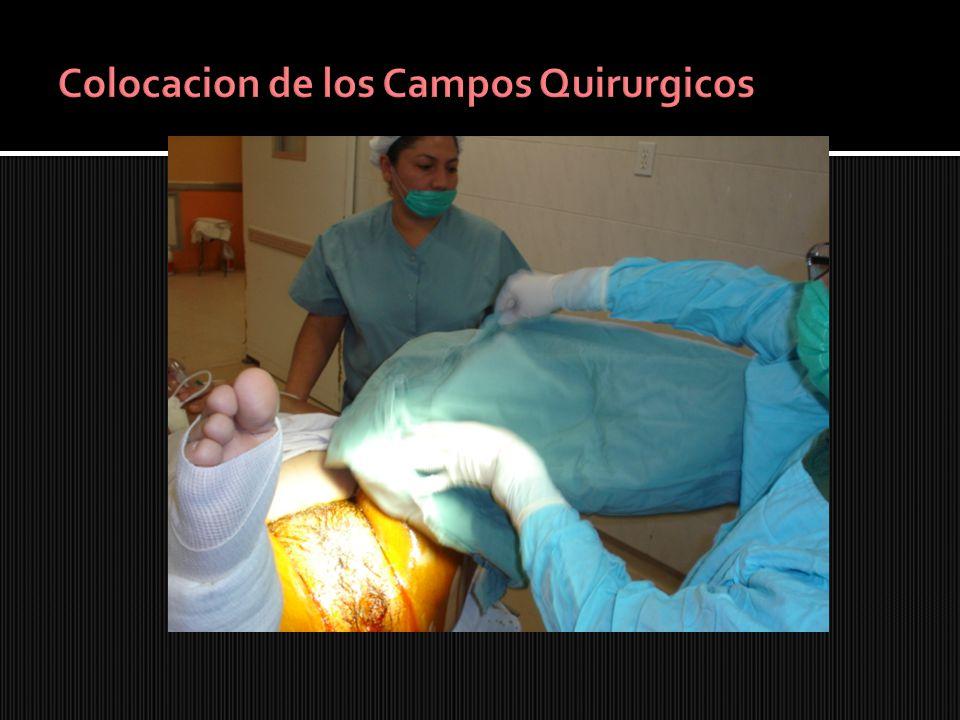 Colocacion de los Campos Quirurgicos