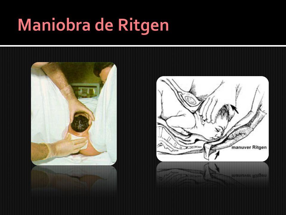 Maniobra de Ritgen