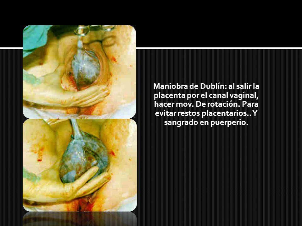 Maniobra de Dublín: al salir la placenta por el canal vaginal, hacer mov.