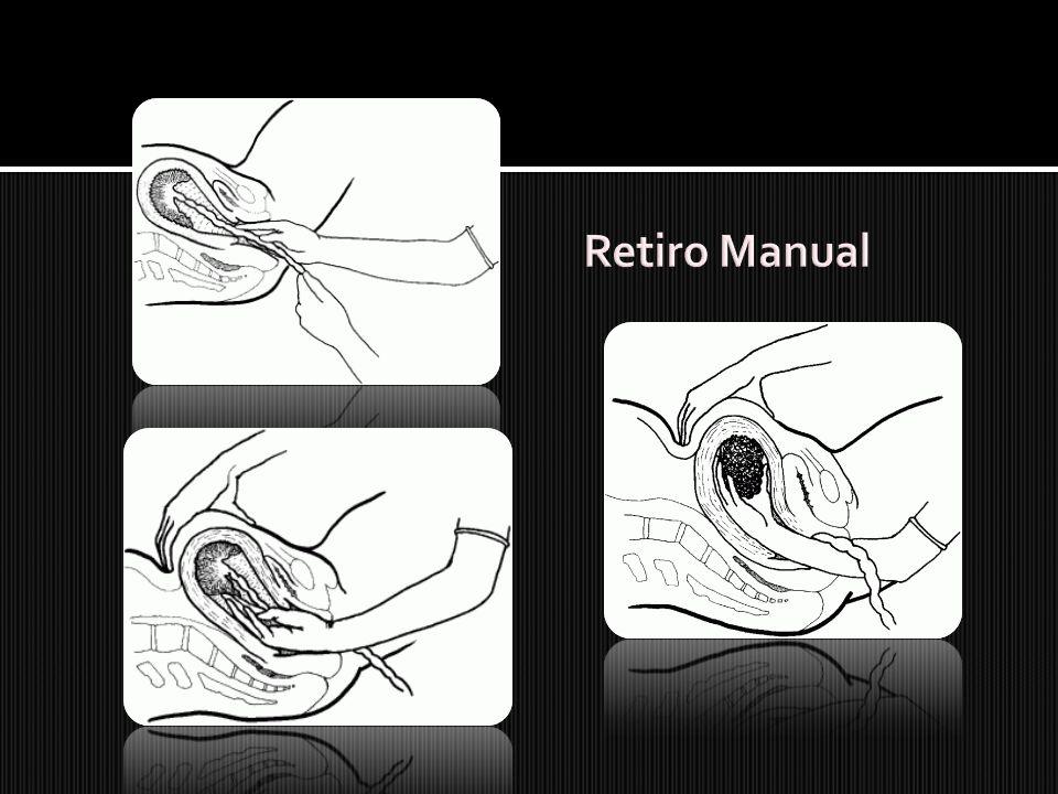 Retiro Manual