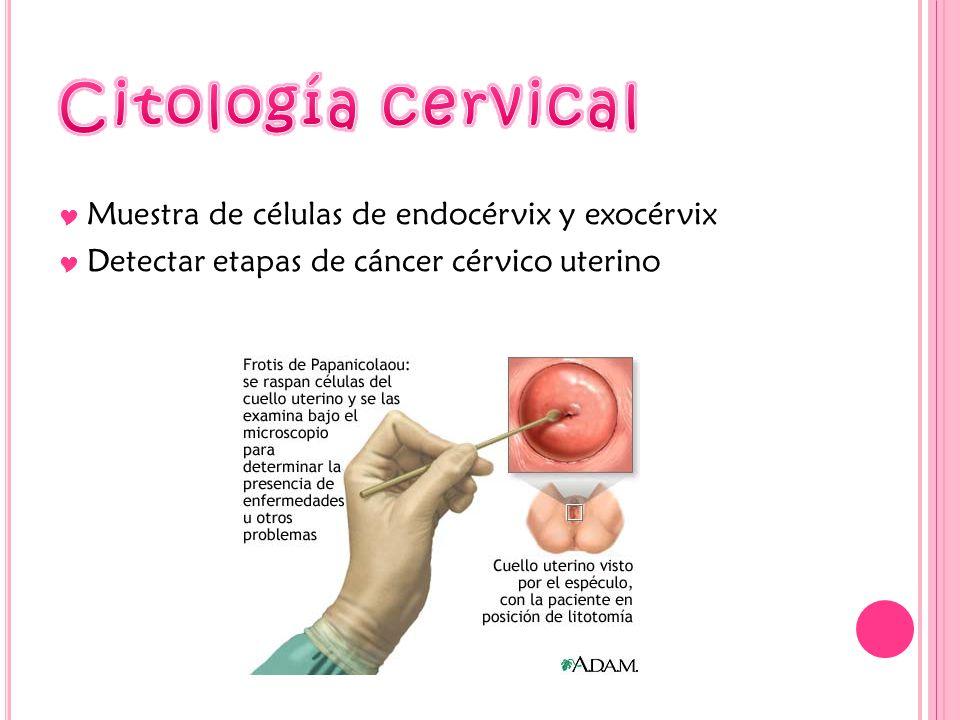Citología cervical Muestra de células de endocérvix y exocérvix