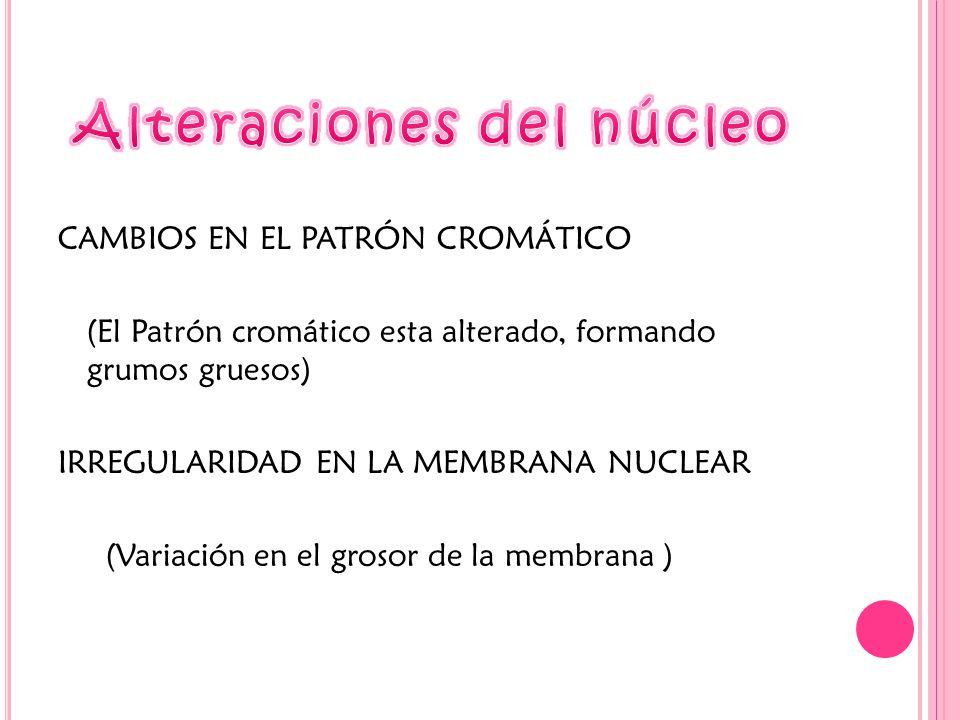 Alteraciones del núcleo