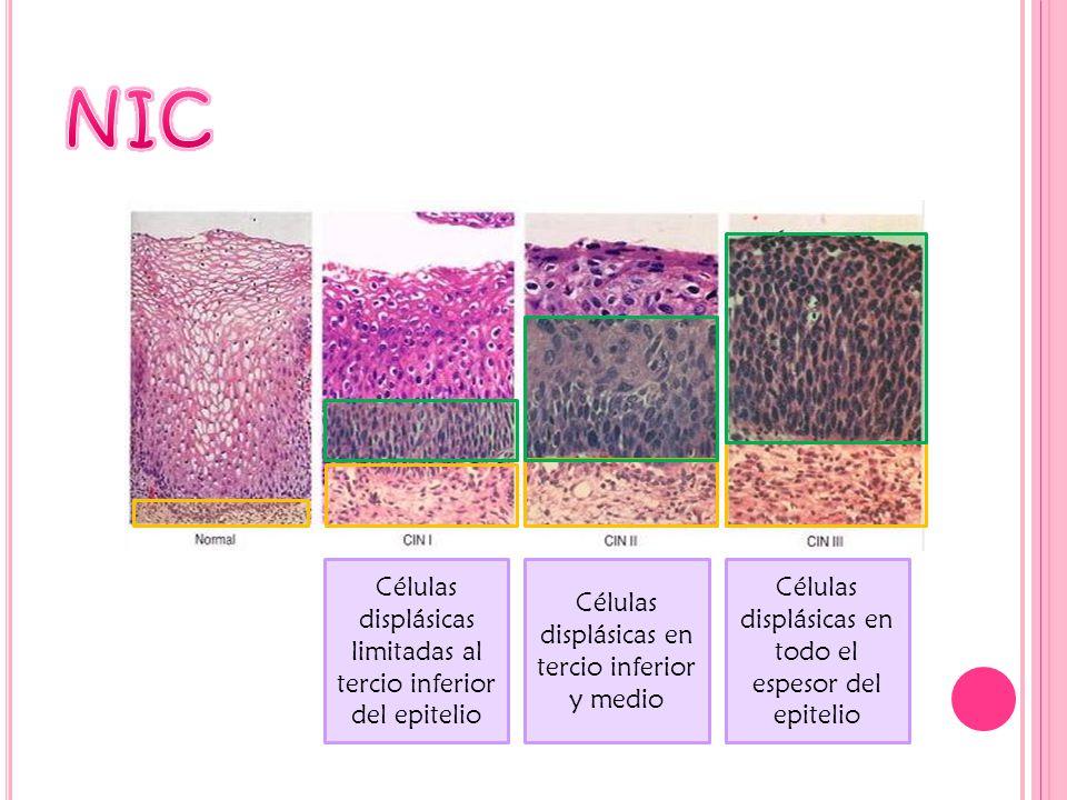 NIC Células displásicas limitadas al tercio inferior del epitelio
