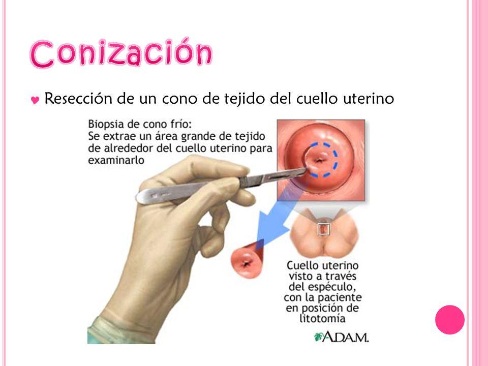 Conización Resección de un cono de tejido del cuello uterino