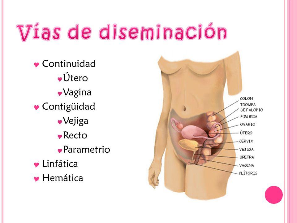 Vías de diseminación Continuidad Útero Vagina Contigüidad Vejiga Recto