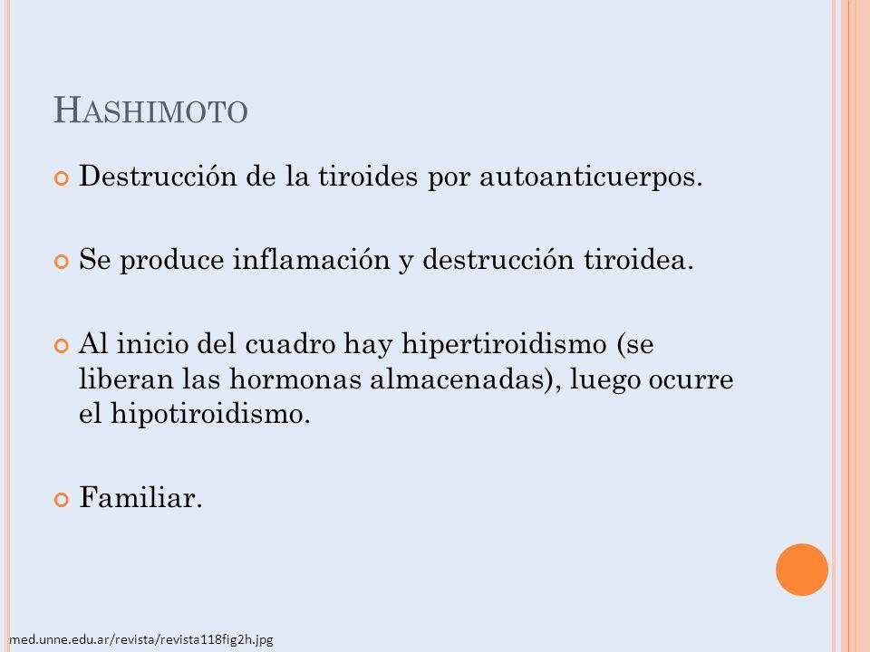 Hashimoto Destrucción de la tiroides por autoanticuerpos.