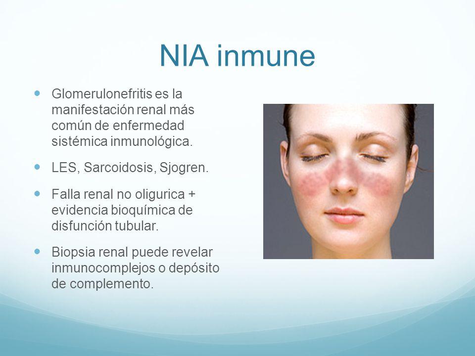 NIA inmune Glomerulonefritis es la manifestación renal más común de enfermedad sistémica inmunológica.