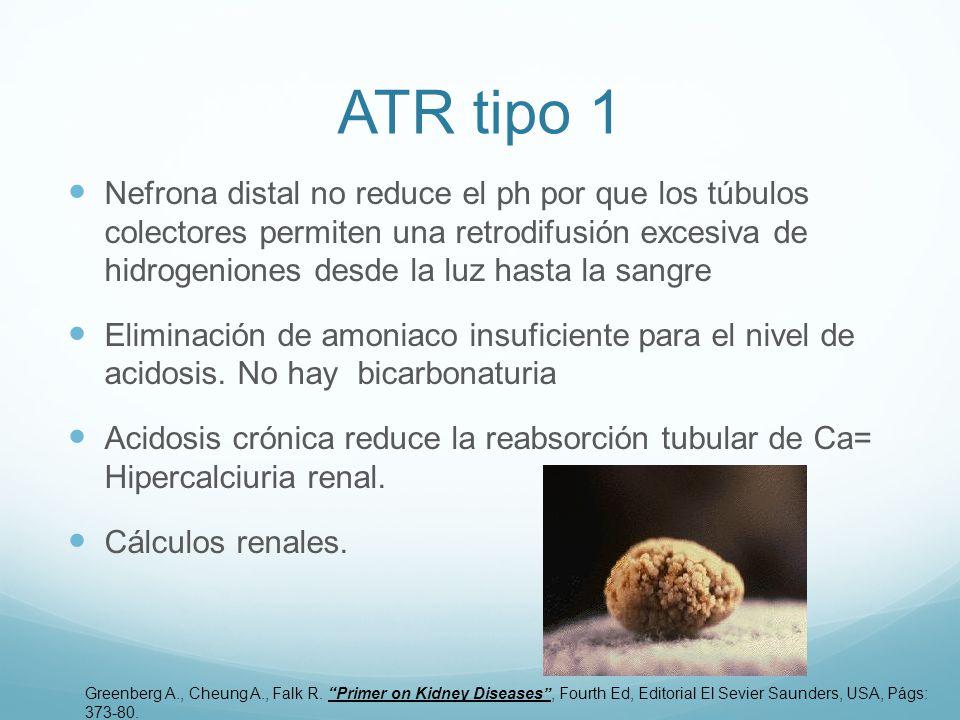 ATR tipo 1