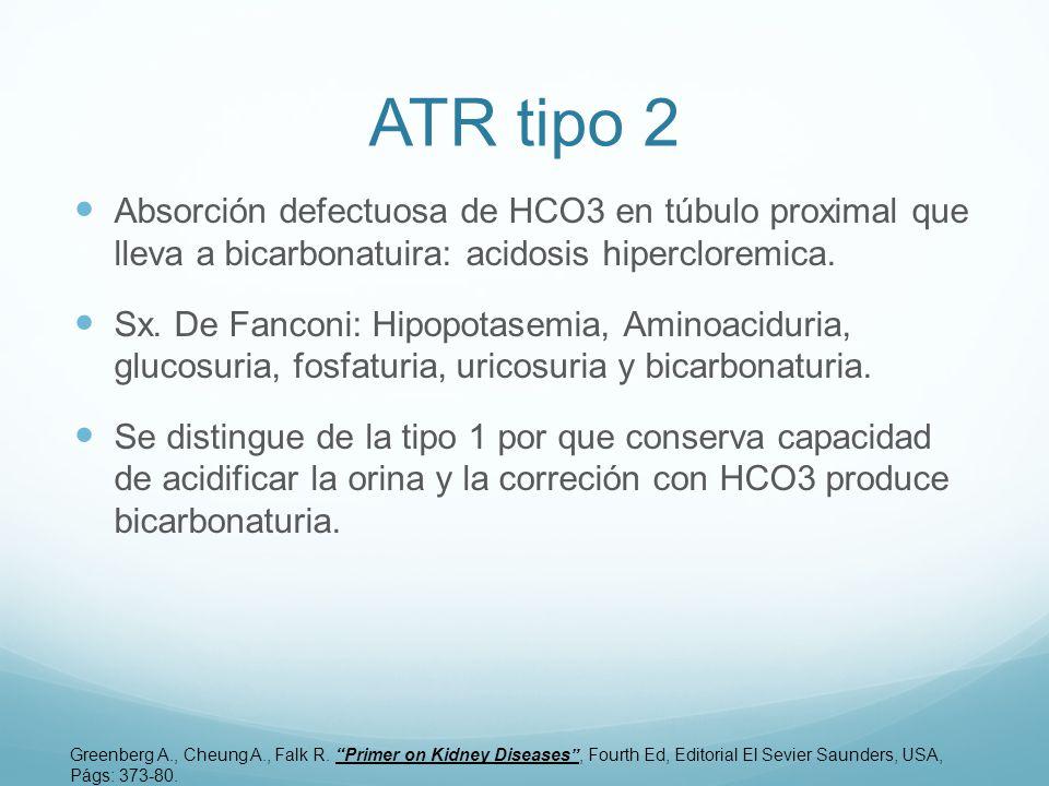 ATR tipo 2 Absorción defectuosa de HCO3 en túbulo proximal que lleva a bicarbonatuira: acidosis hipercloremica.
