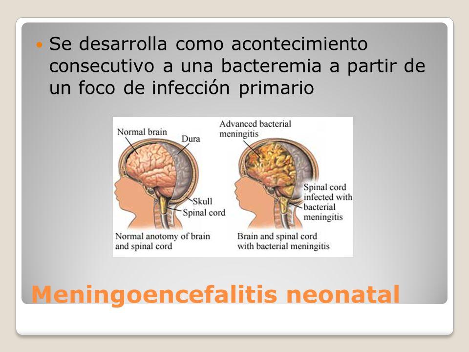 Meningoencefalitis neonatal
