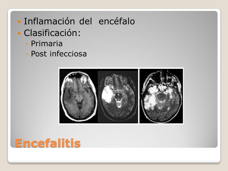 Encefalitis Inflamación del encéfalo Clasificación: Primaria