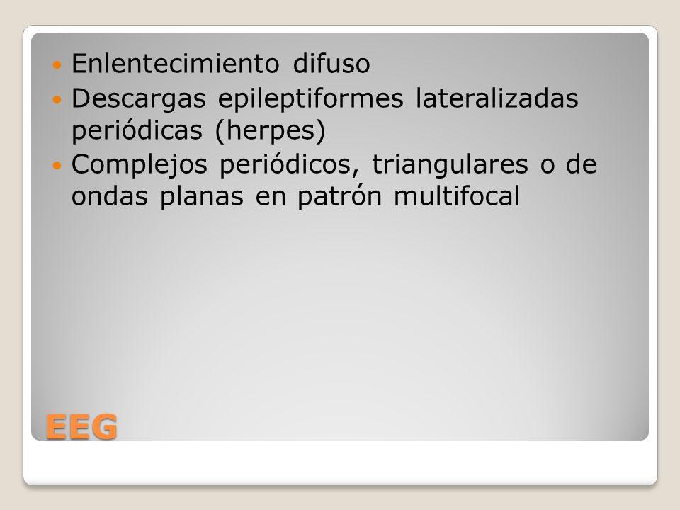 EEG Enlentecimiento difuso