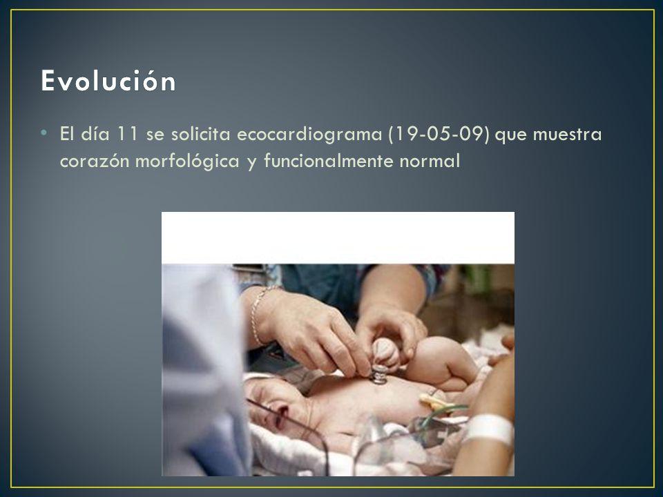 Evolución El día 11 se solicita ecocardiograma (19-05-09) que muestra corazón morfológica y funcionalmente normal.