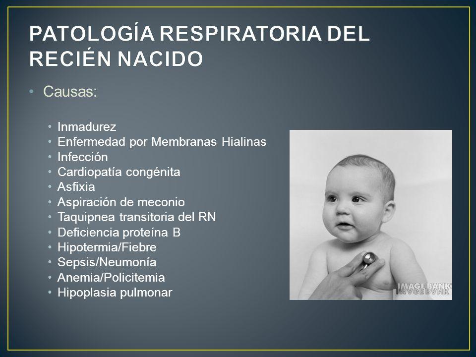 PATOLOGÍA RESPIRATORIA DEL RECIÉN NACIDO