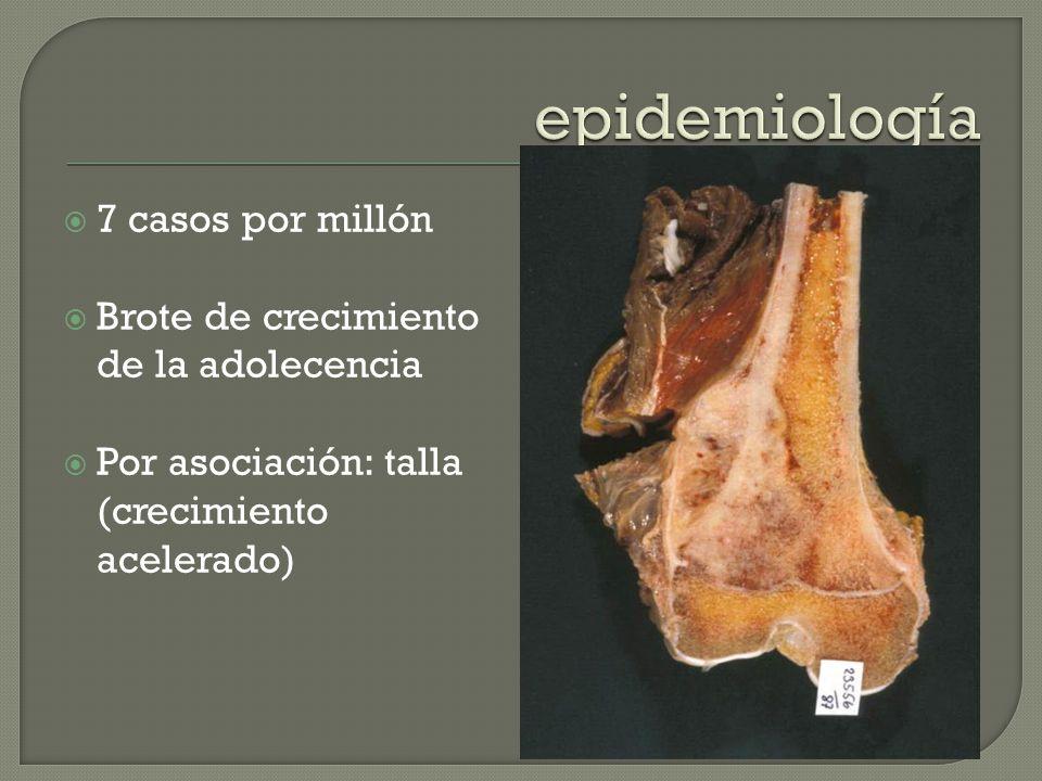 epidemiología 7 casos por millón