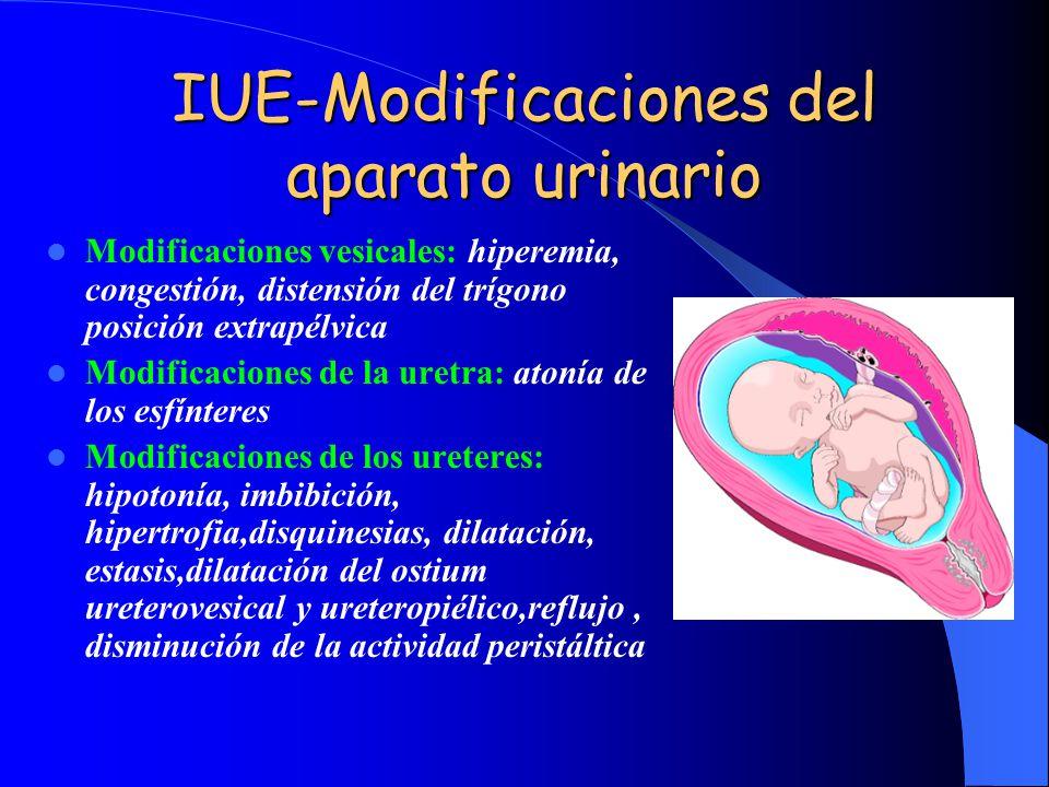 IUE-Modificaciones del aparato urinario