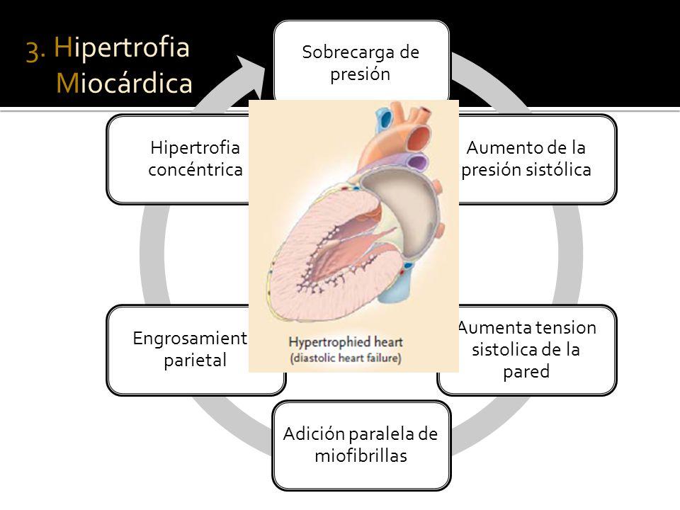 3. Hipertrofia Miocárdica Sobrecarga de presión