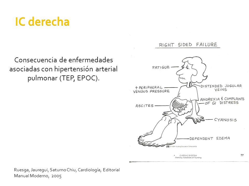 IC derecha Consecuencia de enfermedades asociadas con hipertensión arterial pulmonar (TEP, EPOC).