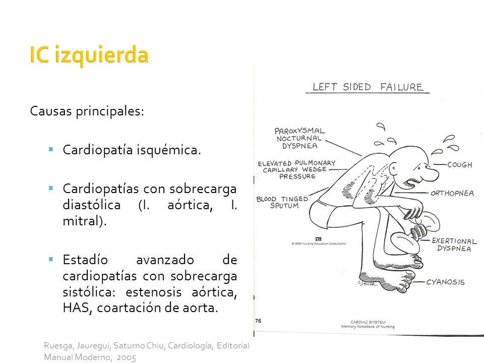 IC izquierda Causas principales: Cardiopatía isquémica.