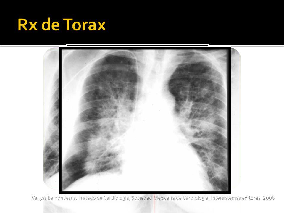 Rx de Torax Redistribución de flujo pulmonar hacia vértices (astas de venado). Alas de mariposa (edema pulmonar).