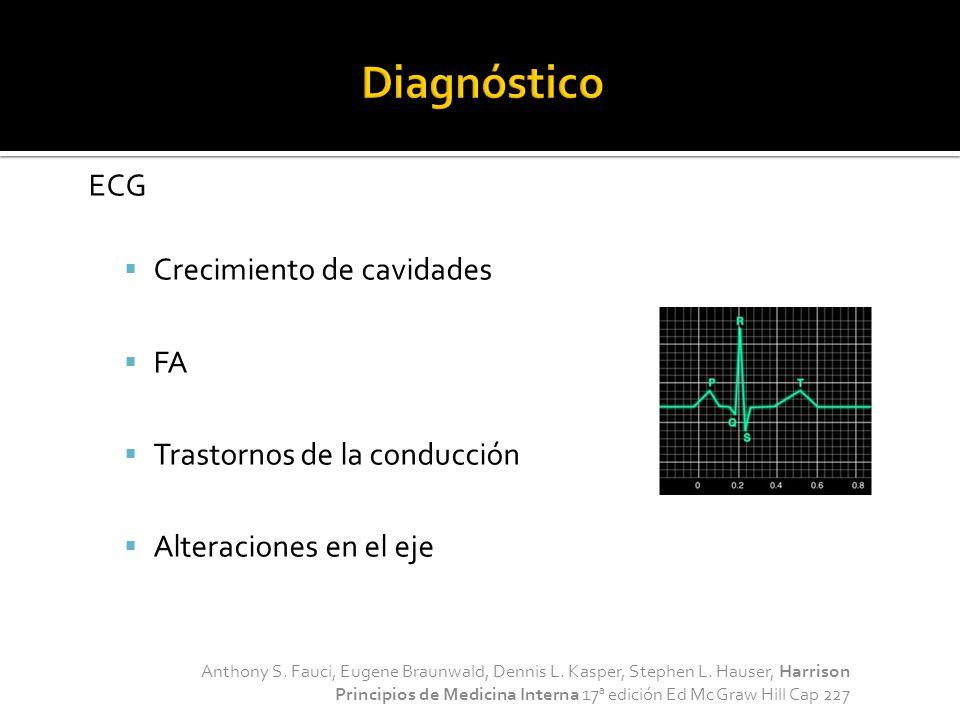 Diagnóstico ECG Crecimiento de cavidades FA