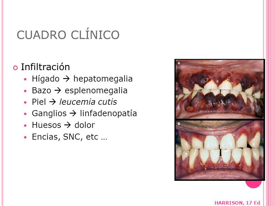 CUADRO CLÍNICO Infiltración Hígado  hepatomegalia