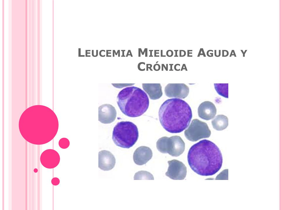 Leucemia Mieloide Aguda y Crónica
