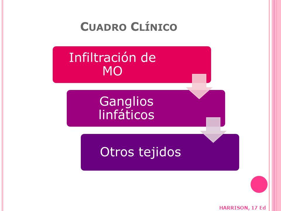 Infiltración de MO Ganglios linfáticos Otros tejidos Cuadro Clínico