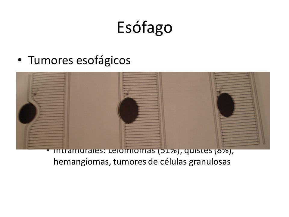 Esófago Tumores esofágicos Benignos: 20% de tumores esofágicos