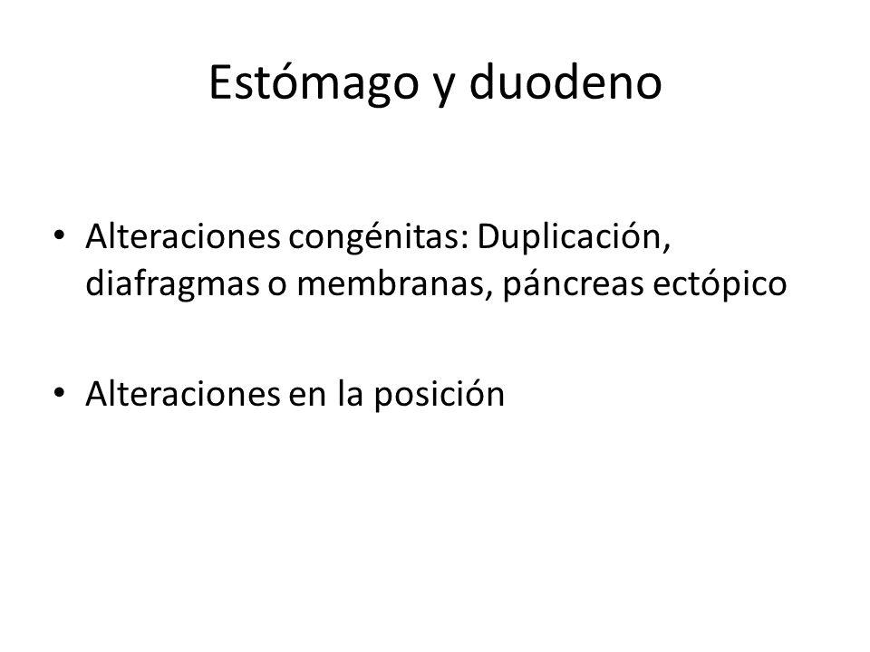 Estómago y duodeno Alteraciones congénitas: Duplicación, diafragmas o membranas, páncreas ectópico.