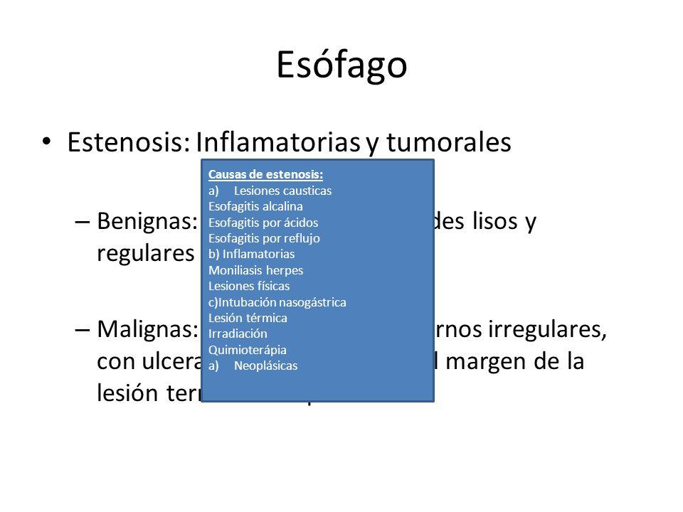 Esófago Estenosis: Inflamatorias y tumorales