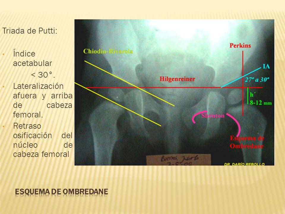 Lateralización afuera y arriba de cabeza femoral.