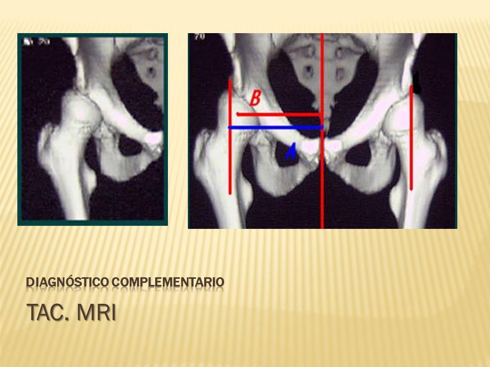 Diagnóstico complementario