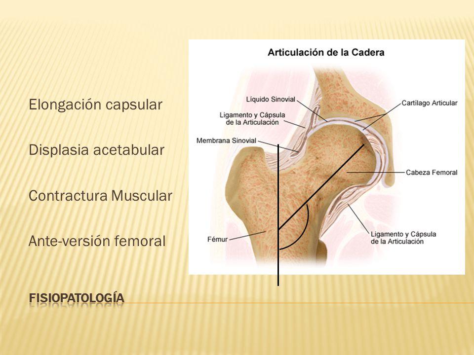 Elongación capsular Displasia acetabular Contractura Muscular