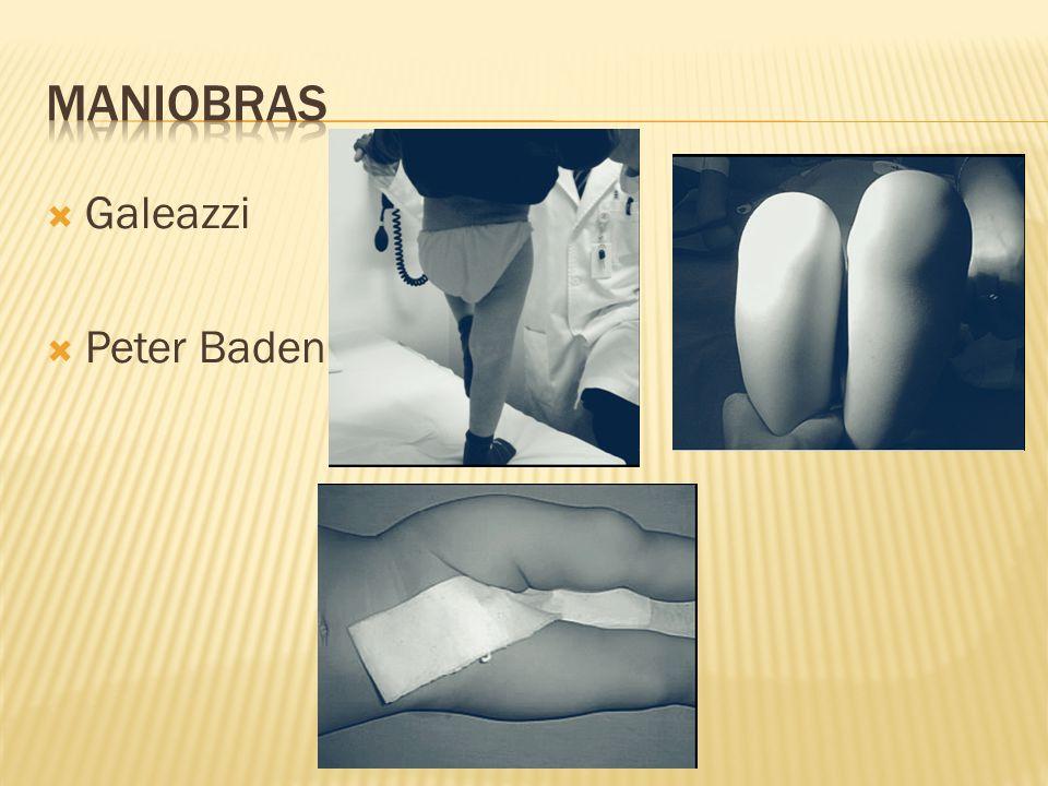 Maniobras Galeazzi Peter Baden
