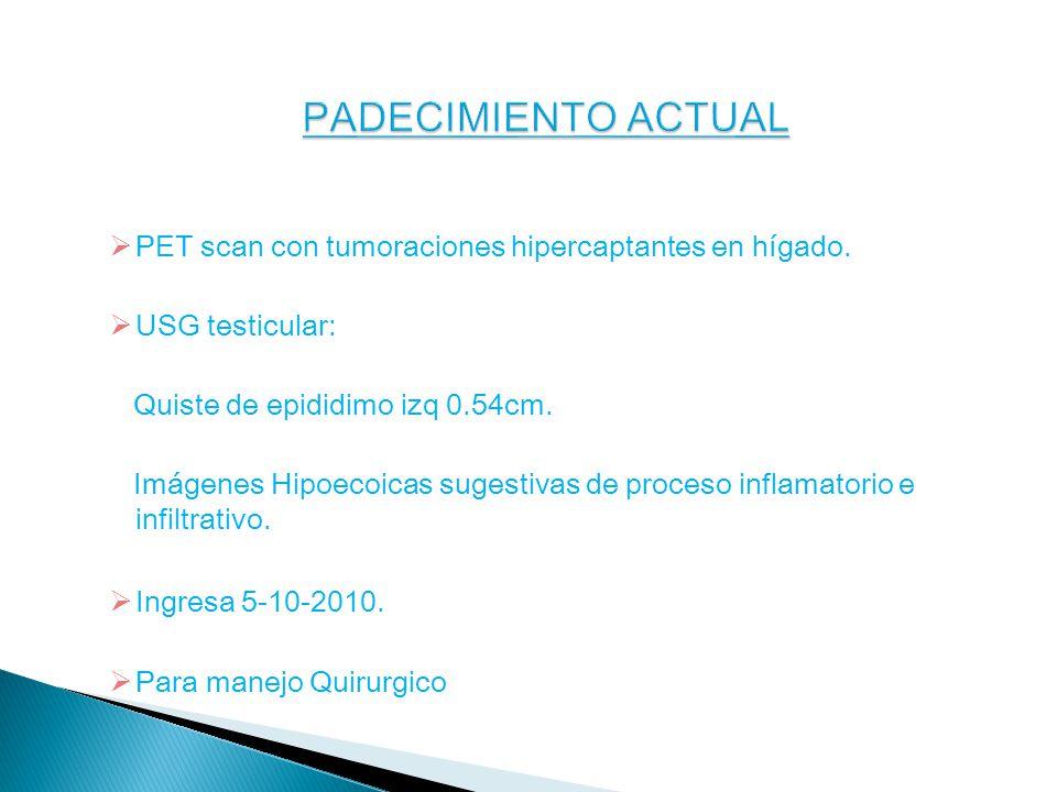 PADECIMIENTO ACTUAL PET scan con tumoraciones hipercaptantes en hígado. USG testicular: Quiste de epididimo izq 0.54cm.