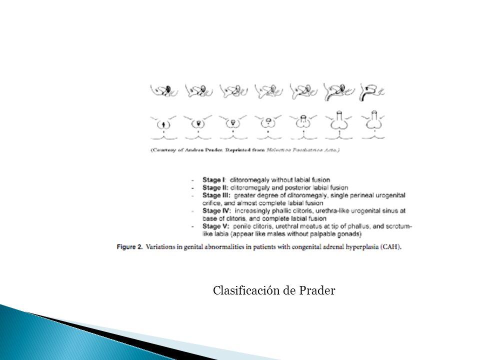 Clasificación de Prader