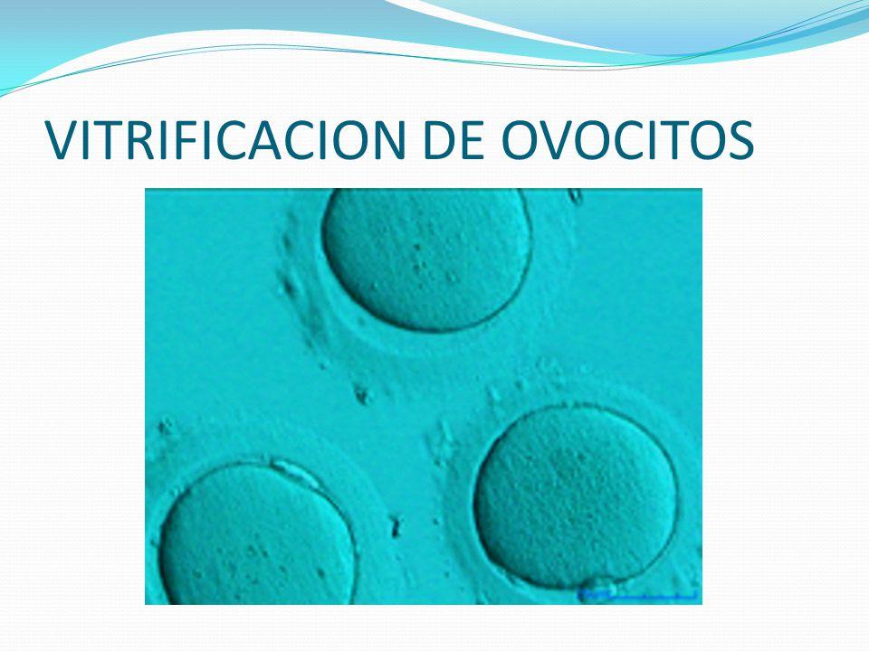 VITRIFICACION DE OVOCITOS