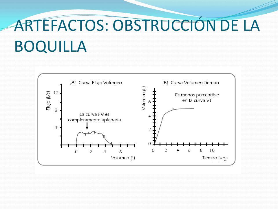 ARTEFACTOS: OBSTRUCCIÓN DE LA BOQUILLA