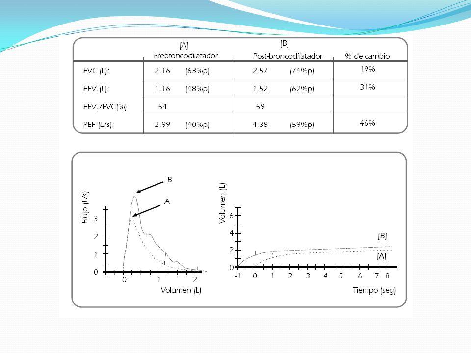 Espirometría pre (A) y postbroncoditalatador (B)
