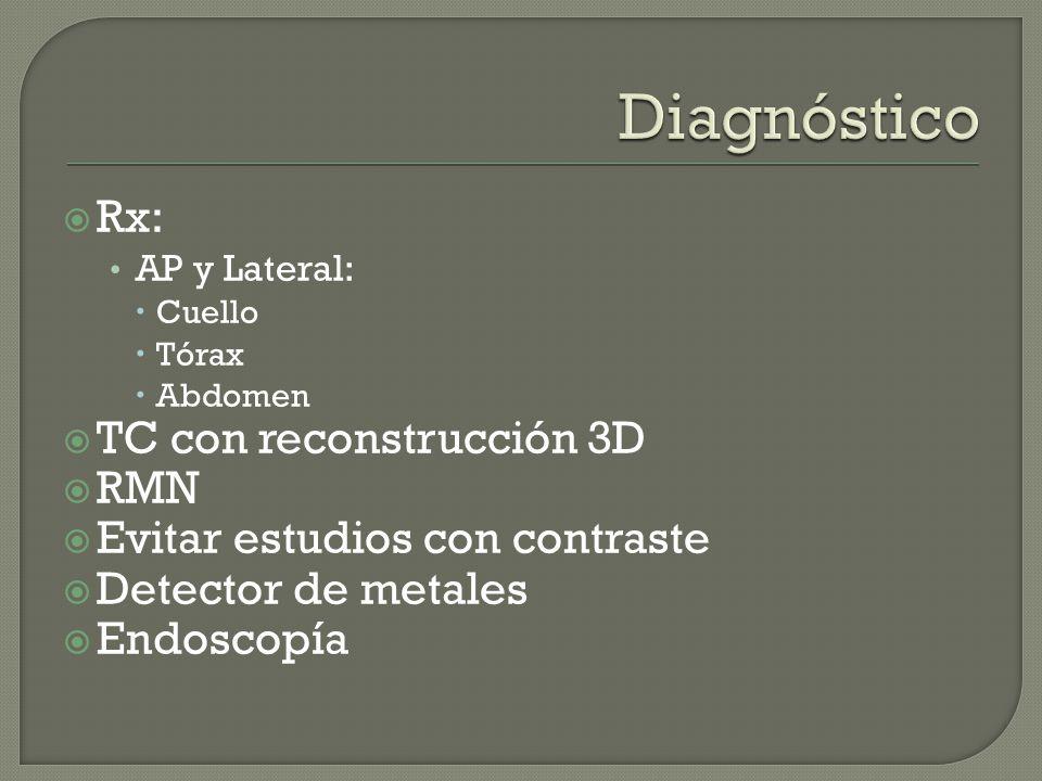 Diagnóstico Rx: TC con reconstrucción 3D RMN