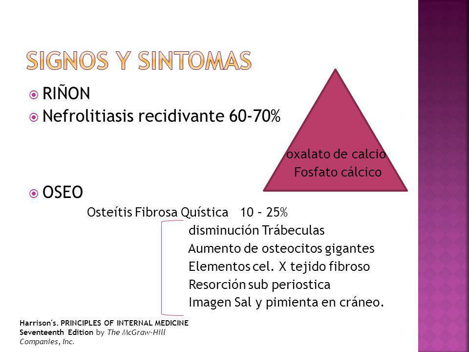 Signos y sintomas RIÑON Nefrolitiasis recidivante 60-70% OSEO