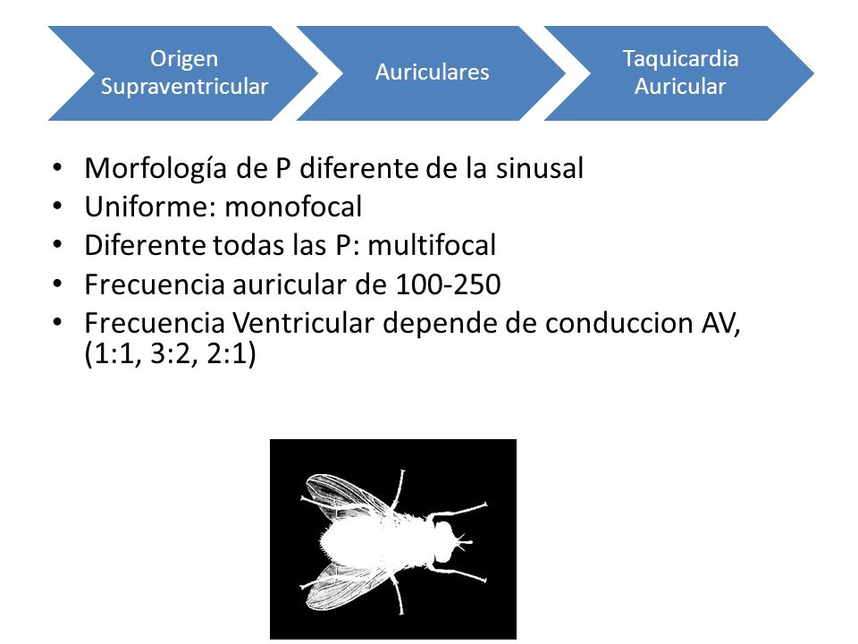 Morfología de P diferente de la sinusal Uniforme: monofocal