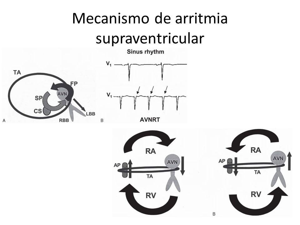 Mecanismo de arritmia supraventricular