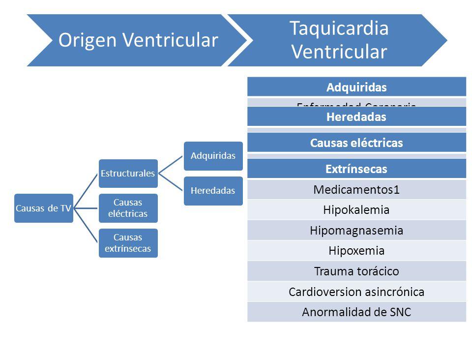 Taquicardia Ventricular