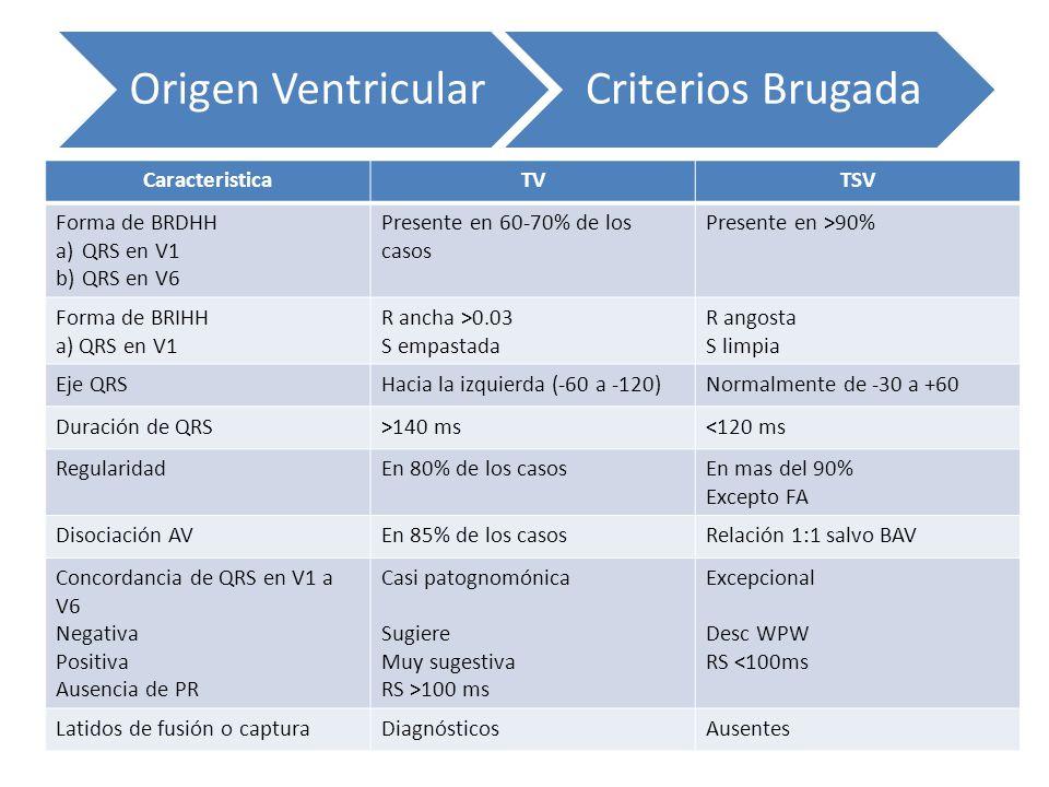 Origen Ventricular Criterios Brugada Caracteristica TV TSV
