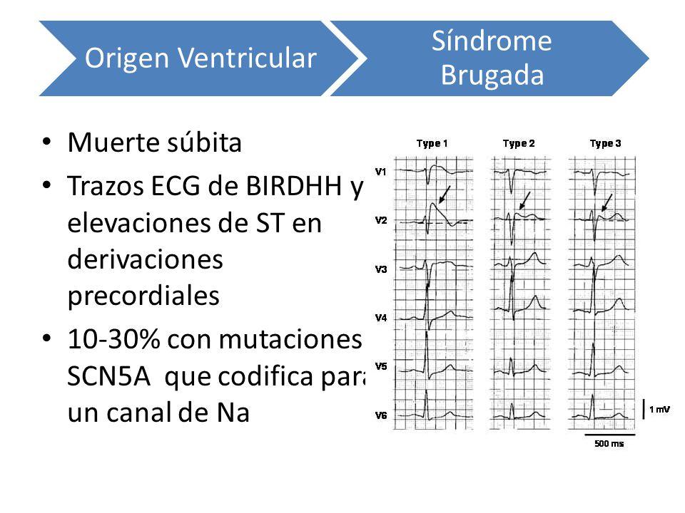 Origen Ventricular Síndrome Brugada Muerte súbita